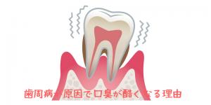 歯周病 口臭 原因
